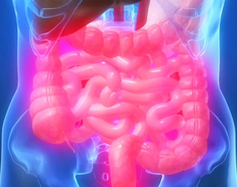 Is bowel cancer preventable?